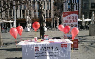 Celebramos el Día Internacional del Linfedema